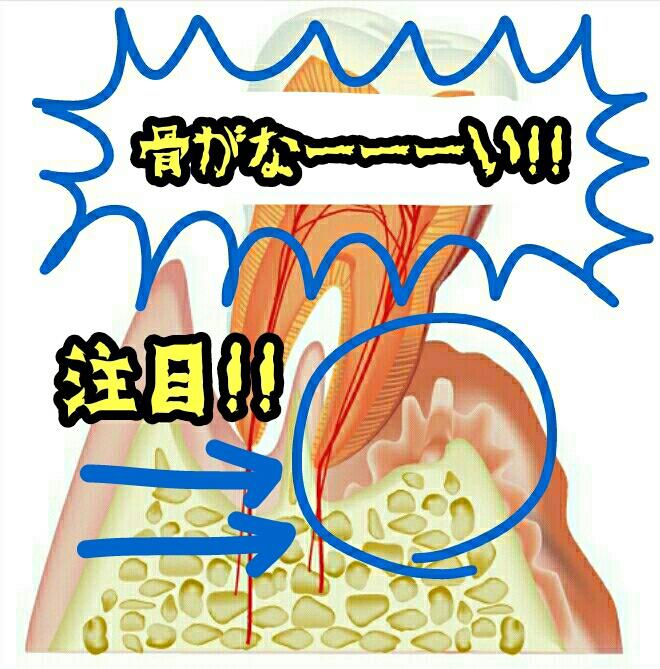 「歯周病」←言葉から危機感が全然伝わらない件