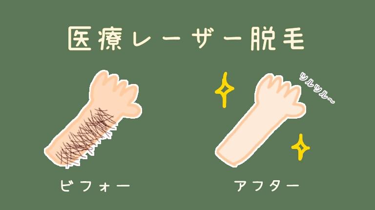 【医療レーザー脱毛8回】脱毛前の状態と脱毛完了から半年経った状態を公開