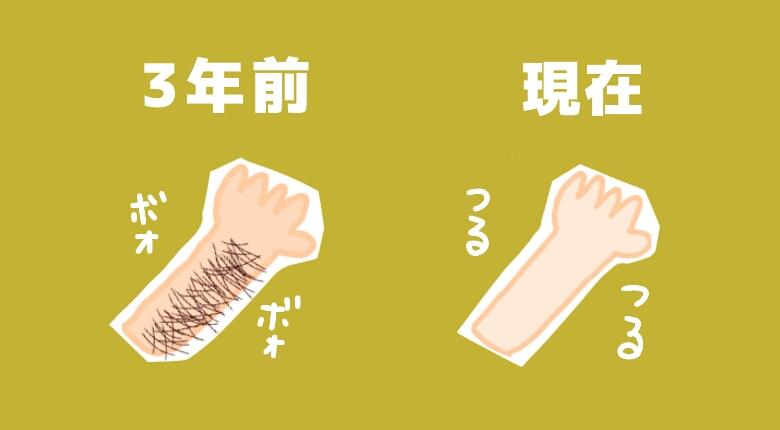 【快適オブ快適】元腕毛ボーボー女子、医療脱毛完了後から約3年経過!